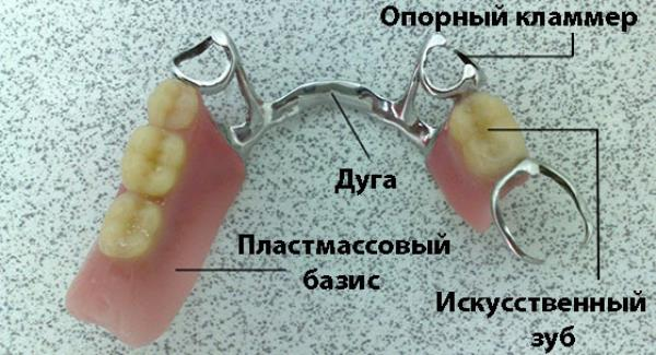 Базис частичного съемного зубного протеза