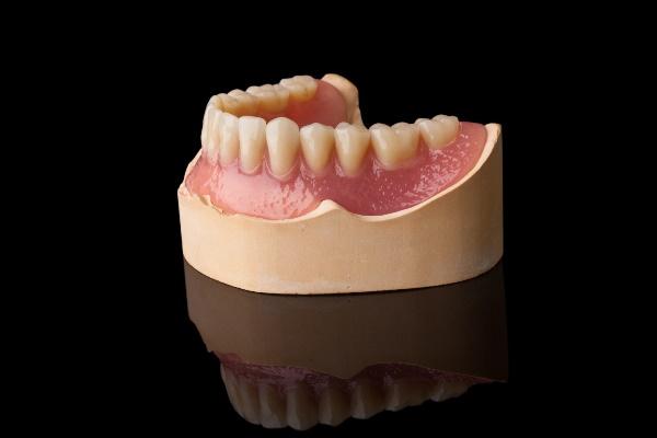 Изготовление базиса зубного протеза