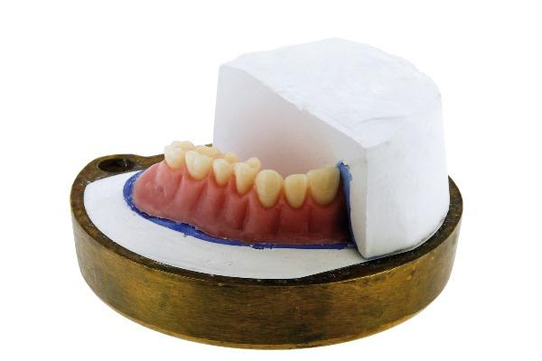 Применение быстротвердеющей пластмассы в стоматологии
