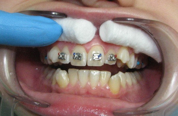Частичные брекеты на 6 зубов