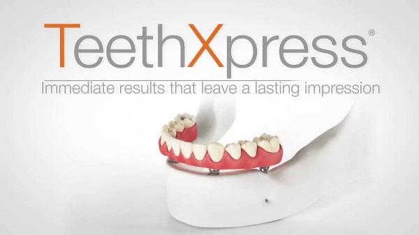 Плюсы и минусы имплантации Teethxpress