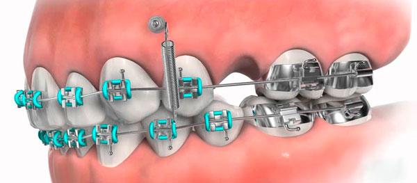 Применение в ортодонтии