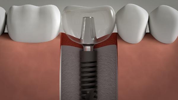 Стоит ли прибегать к имплантации зубов у детей