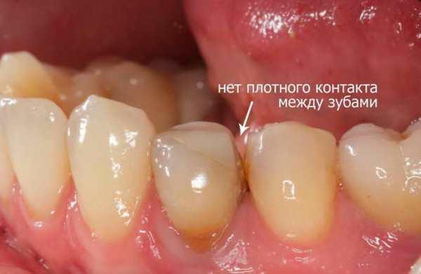 Неприятный запах из под коронки зуба причины