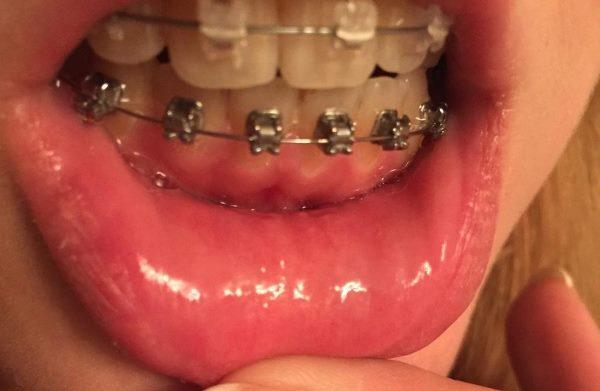 Шатается зуб после установки брекетов