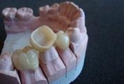 Стоматологическая керамика суть применения