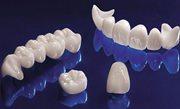 Стоматологическая керамика цена