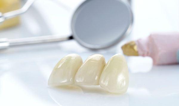 Характеристики стоматологической керамики