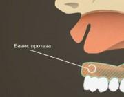 Базис съемного зубного протеза
