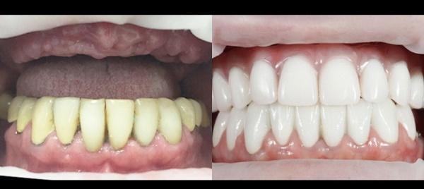 Бесплатная имплантация зубов пенсионерам