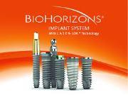 Импланты Биогоризонт отзывы