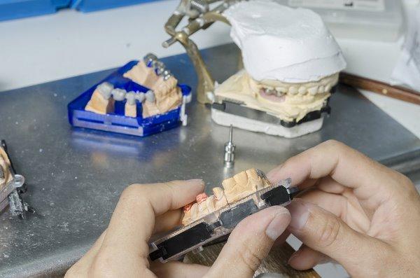 Основы штамповки коронок