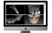 Имплантация Teethxpress отзывы