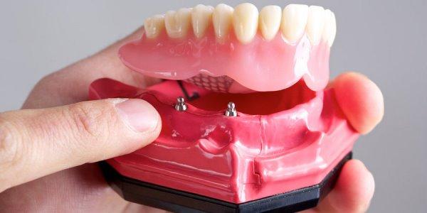 Съемное протезирование с применением имплантов
