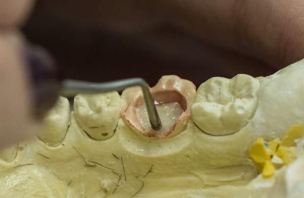 Композитная вкладка в зуб