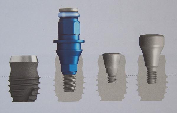 Короткие импланты на жевательные зубы
