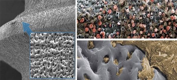 Обработка поверхности импланта
