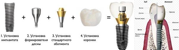 Риски имплантации зубов пожилых людей