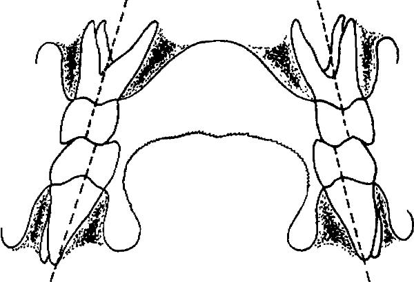 Выбор опорных зубов для кламмерной фиксации