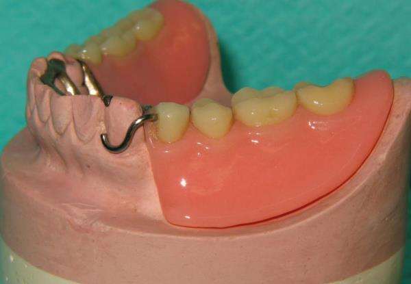 Принцип выбора опорных зубов и расчет нагрузки