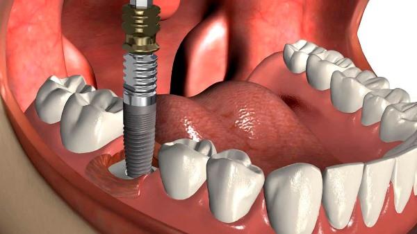 Что делать, если выпадает имплант зуба