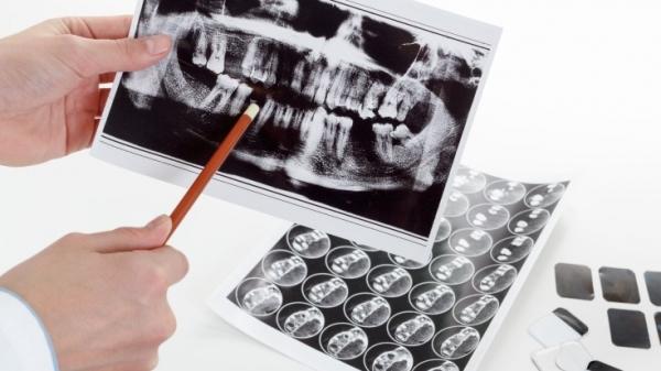 Этапы ортодонтического лечения брекетами