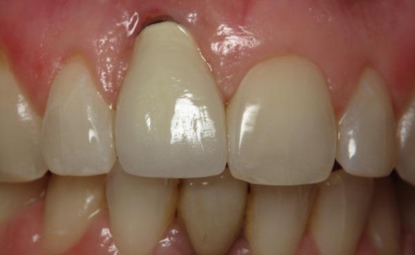 Как избавиться от крови из-под коронки зуба
