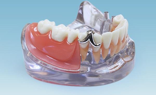 Как проявляется аллергия на акриловый зубной протез и что делать