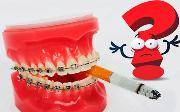 Можно ли курить с брекетами металлическими
