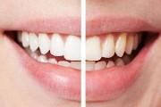 Отбеливание зубов после брекетов