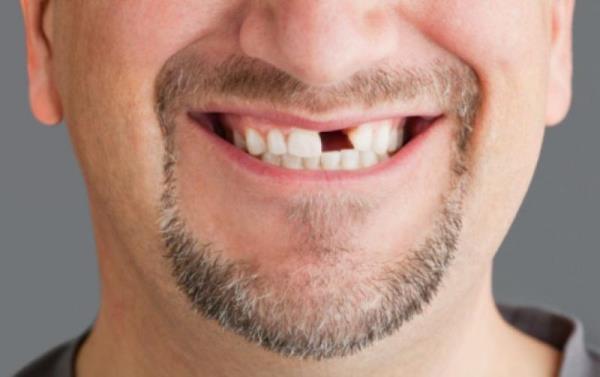 Через какое время проводится протезирование после удаления зуба