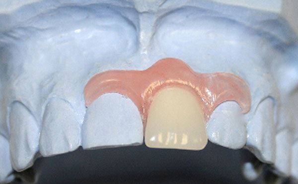 Время протезирования после удаления зубов