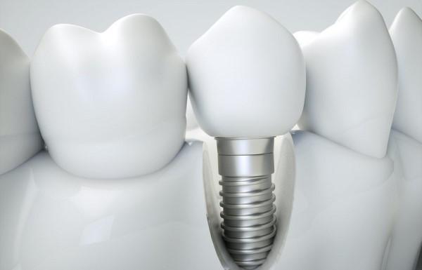 Срок эксплуатации титанового импланта зуба