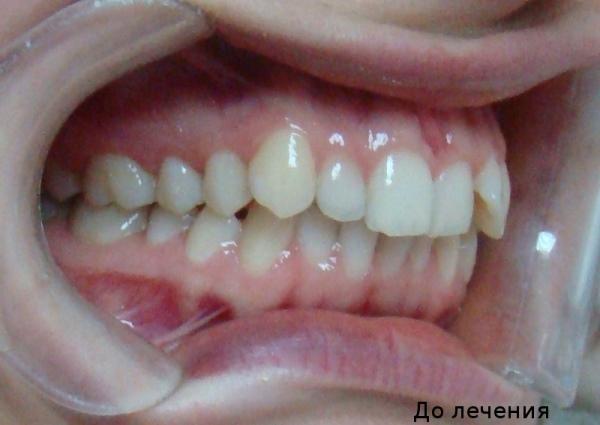 Адекватная коррекция вестибулярного положения зубов