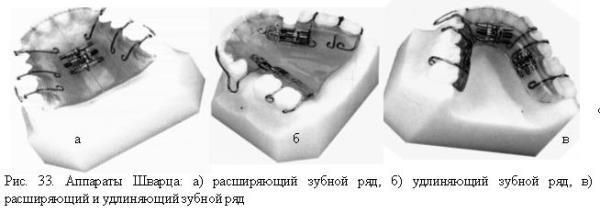 Аппарат шварца ортодонтия