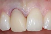 Появление крови из под коронки зуба