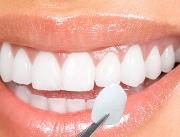 Виниры на зубы цена фото