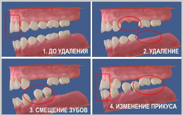 Изменения в челюстной кости