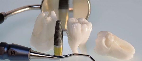 Показания к ультразвуковой имплантации зубов