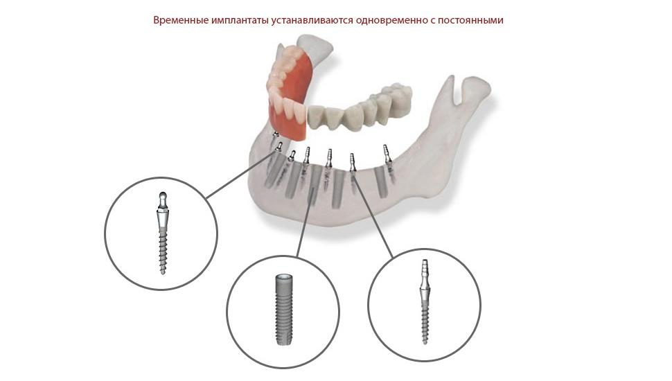Виды протезирования
