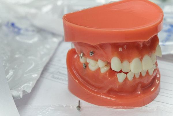 Временные импланты зубов цена