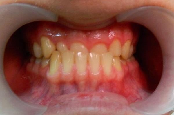 Аппарат форсус ортодонтия