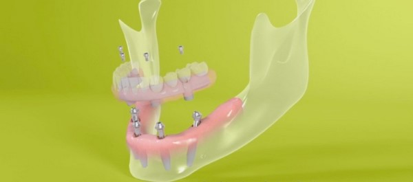 Преимущества имплантации зубов без синус лифтинга