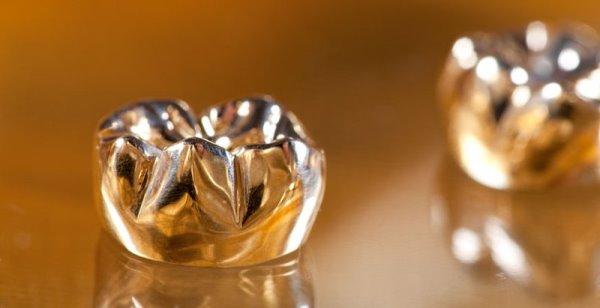Металлические коронки на зубы с белым напылением