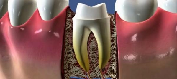 Можно ли и стоит ли ставить коронку на живой зуб