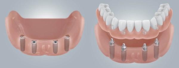 Противопоказания для имплантации зубов на нижней челюсти