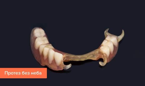 Преимущества зубных протезов без неба