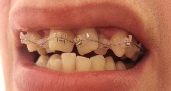 Скученность передних зубов фото