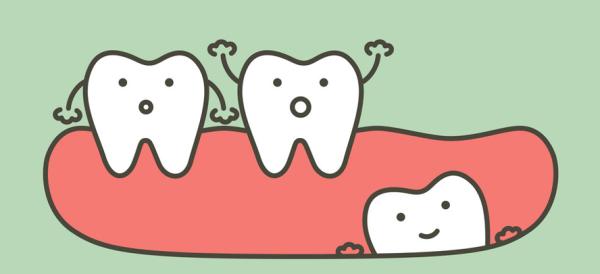 Причины и лечение скученности зубов