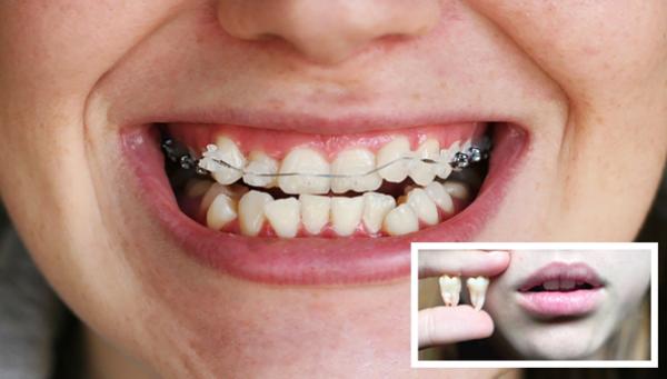 Скученность зубов фото